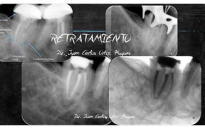 Radiografías de Re-Tratamiento endodontico