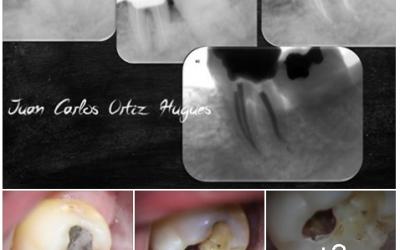 Tratamiento endodontico efectuado en molar inferior.