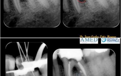 Caso de endodoncia  de desinfección de conductos